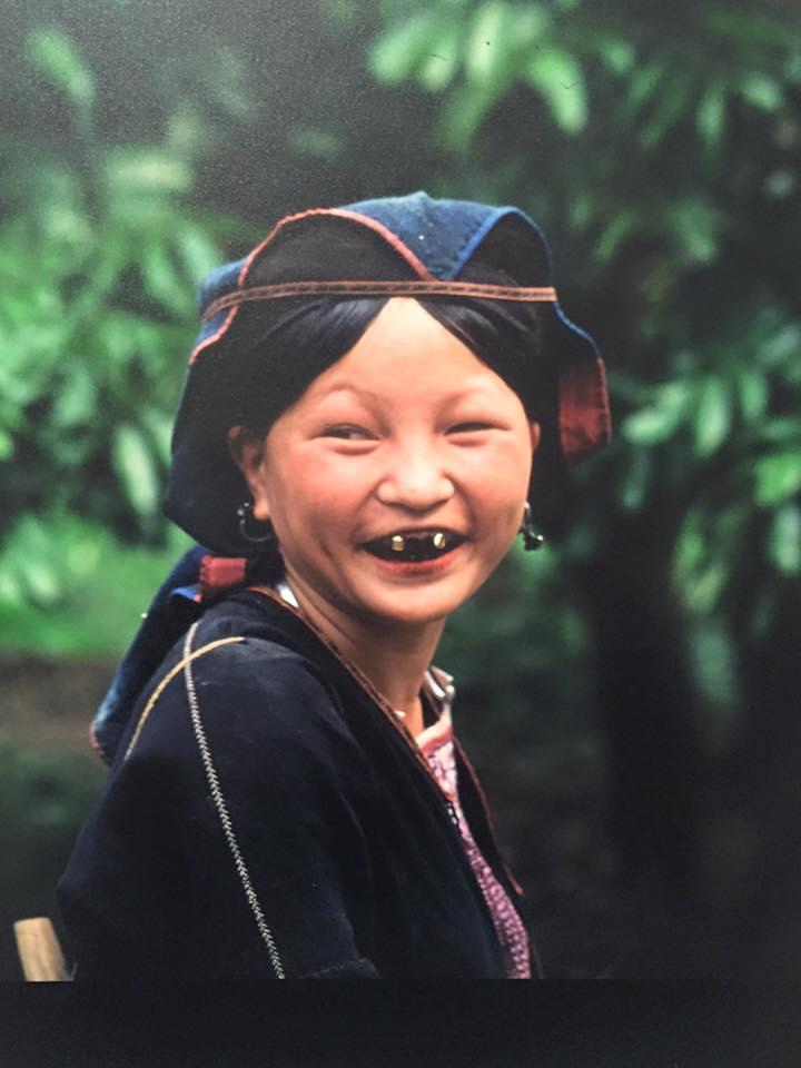 laquered-teeth